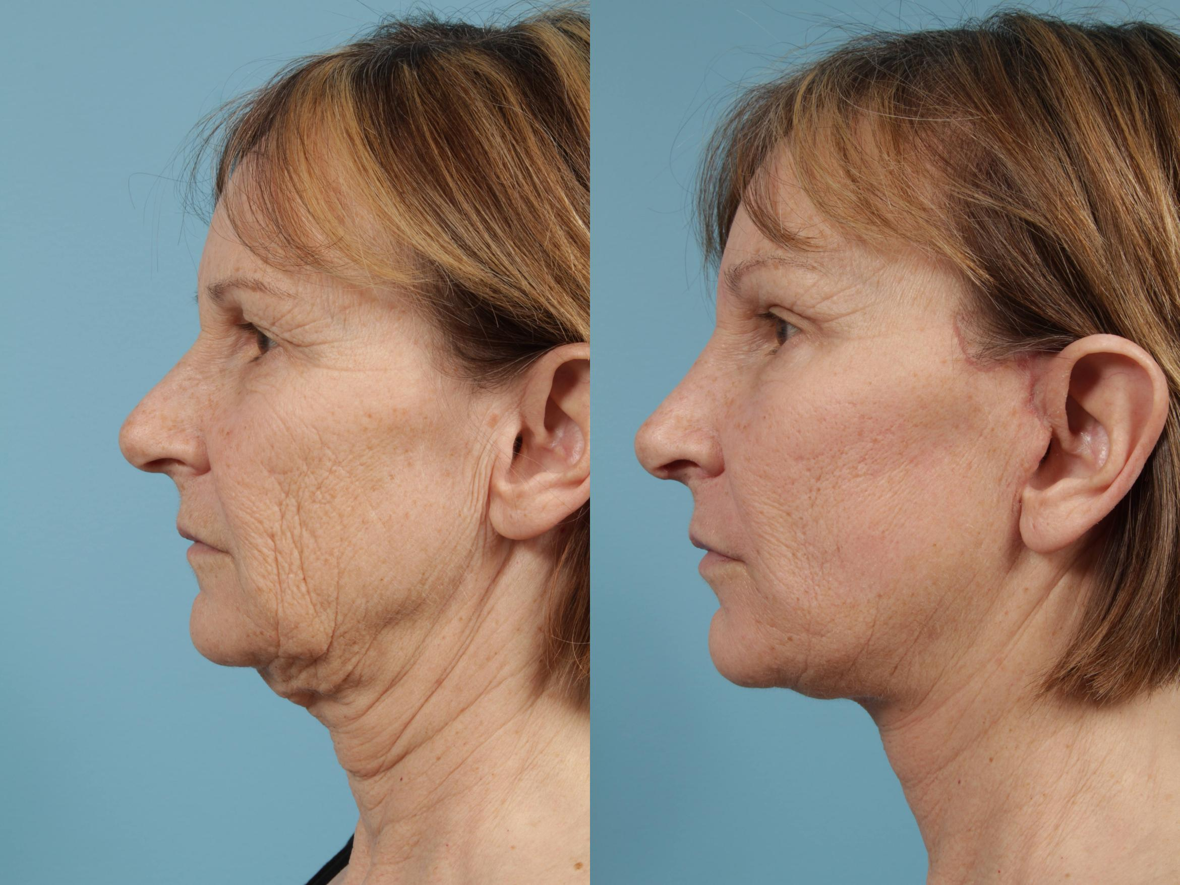 Neck Lift Case 140 Before & After View #1 | Chicago, IL | TLKM Plastic Surgery