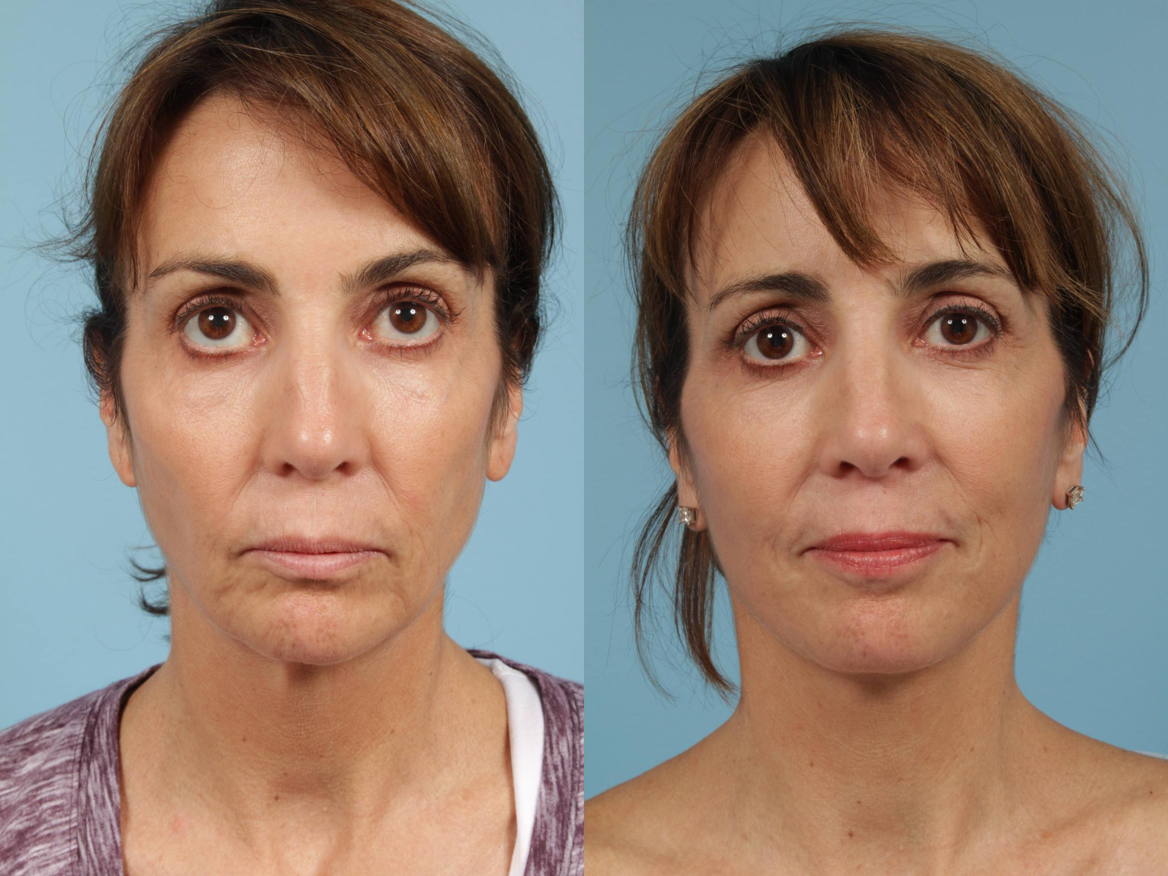 Neck Lift Case 257 Before & After View #3 | Chicago, IL | TLKM Plastic Surgery