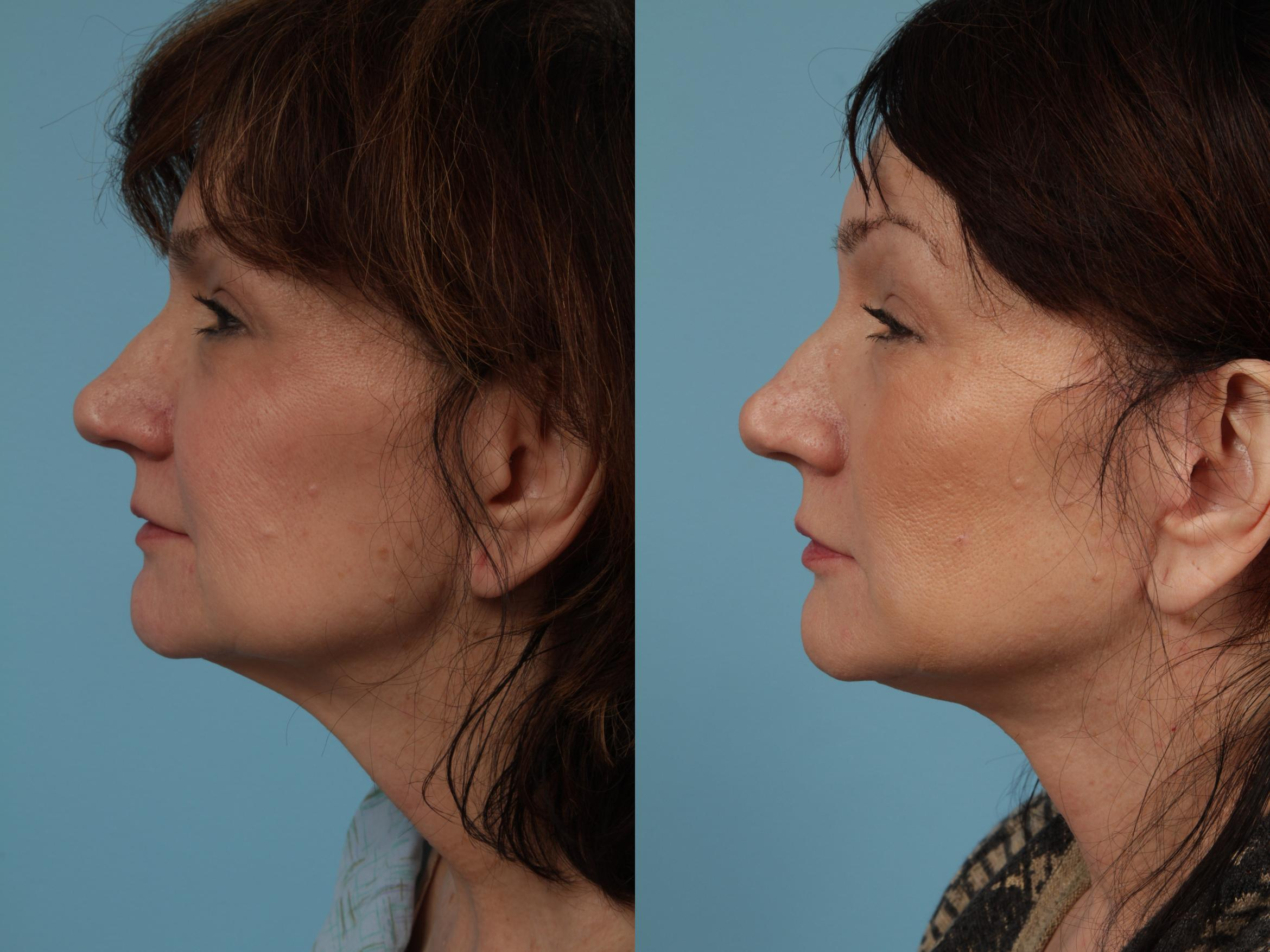 Neck Lift Case 336 Before & After View #1 | Chicago, IL | TLKM Plastic Surgery