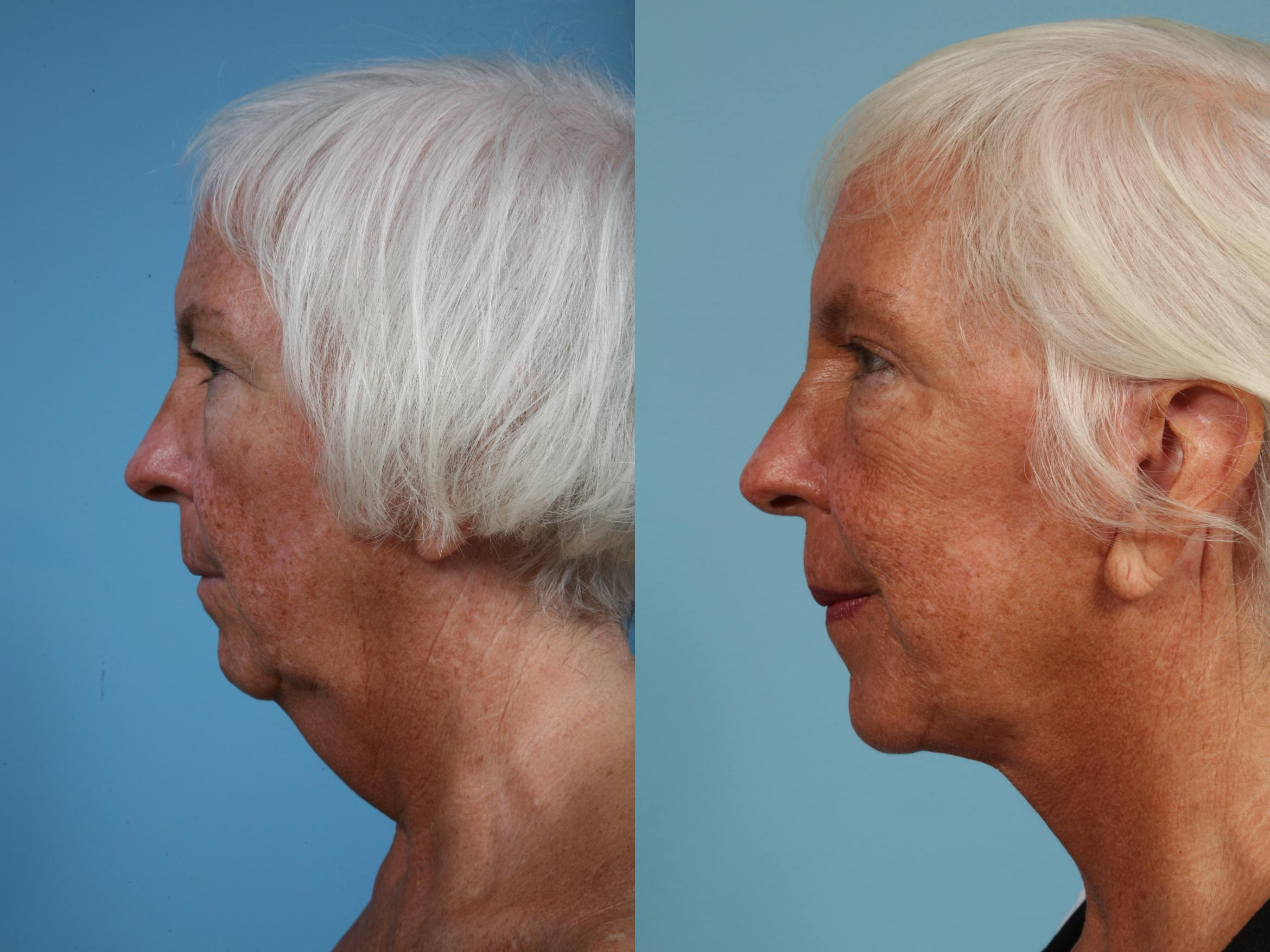 Neck Lift Case 88 Before & After View #1 | Chicago, IL | TLKM Plastic Surgery