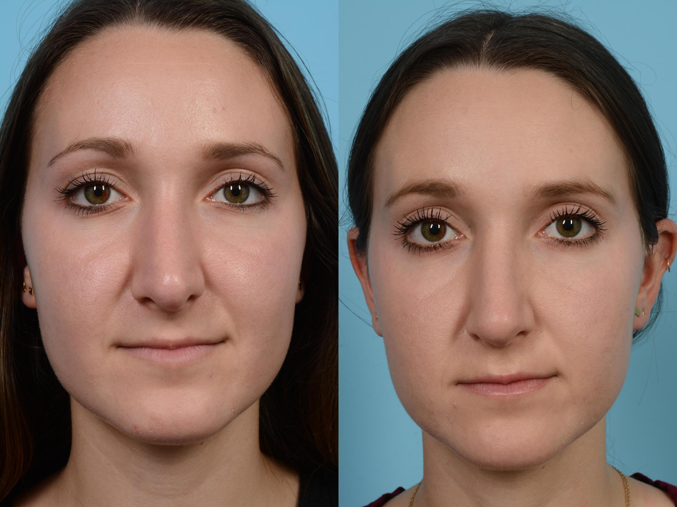 Revision Rhinoplasty by Dr. Mustoe Case 559 Before & After View #1 | Chicago, IL | TLKM Plastic Surgery