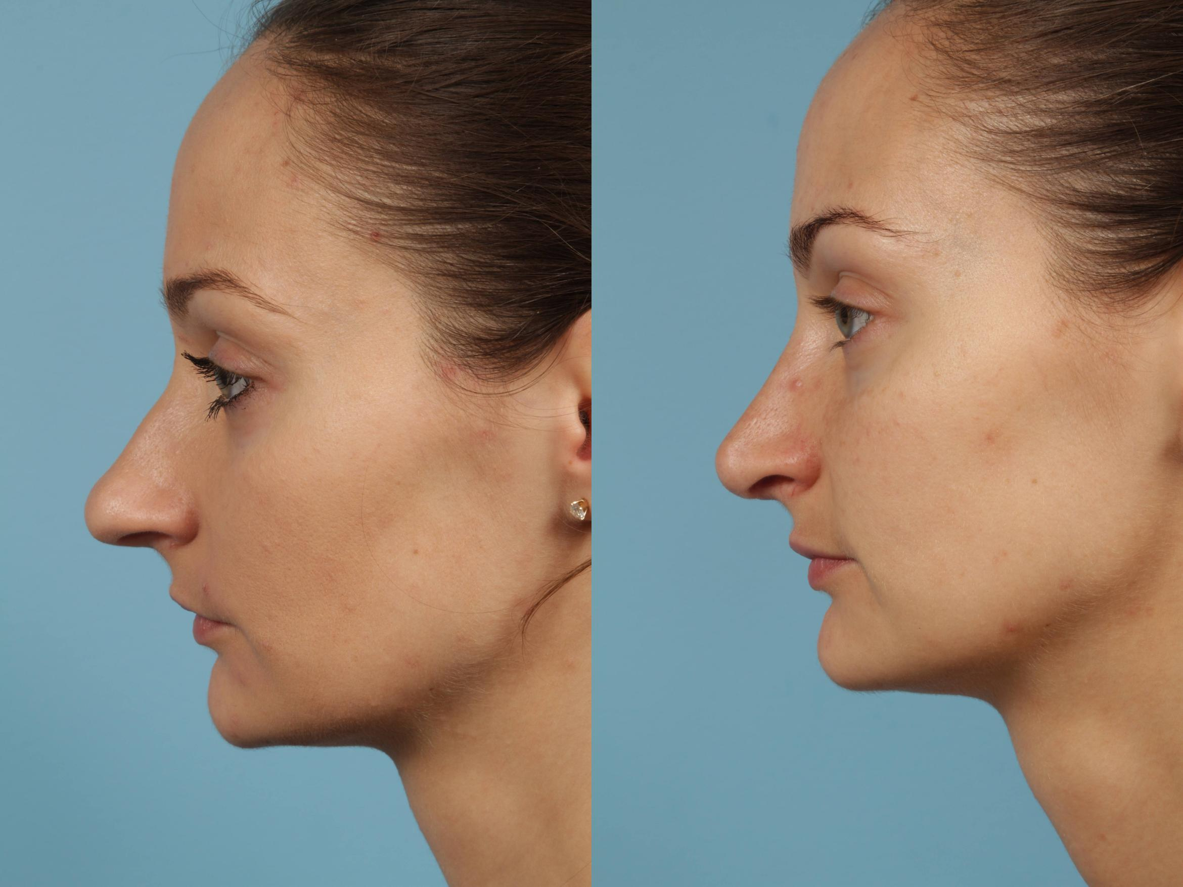 Rhinoplasty Case 187 Before & After View #1 | Chicago, IL | TLKM Plastic Surgery