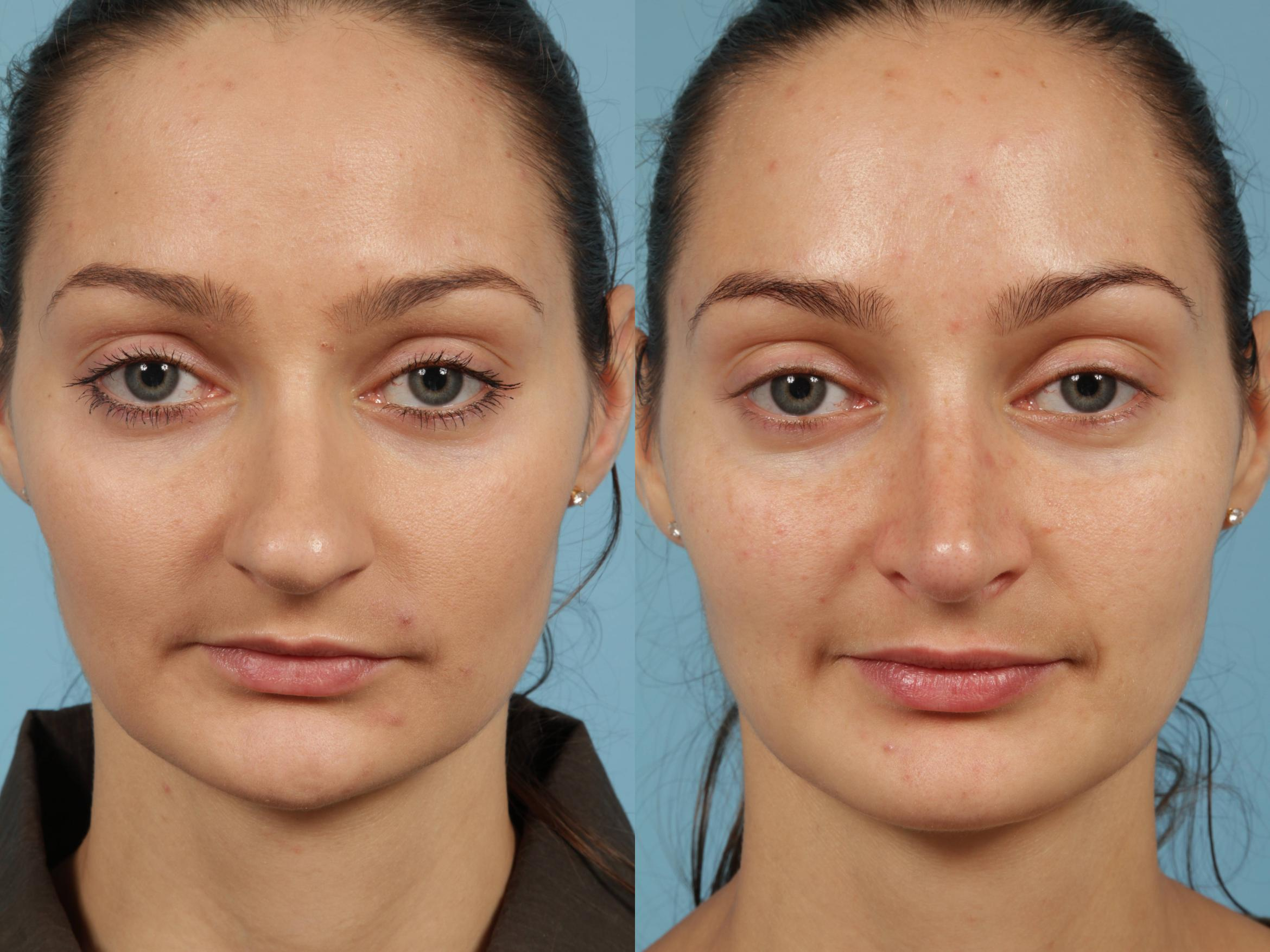 Rhinoplasty Case 187 Before & After View #2 | Chicago, IL | TLKM Plastic Surgery