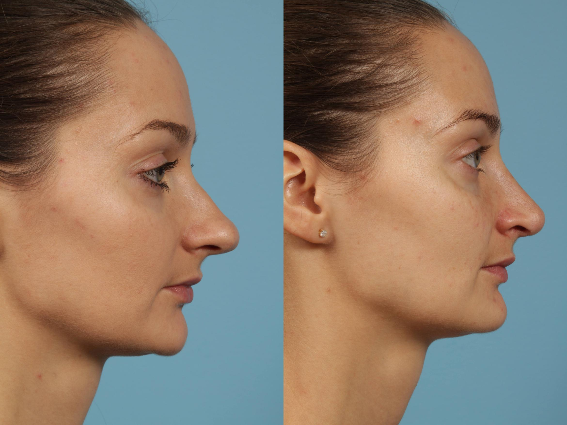 Rhinoplasty Case 187 Before & After View #3 | Chicago, IL | TLKM Plastic Surgery