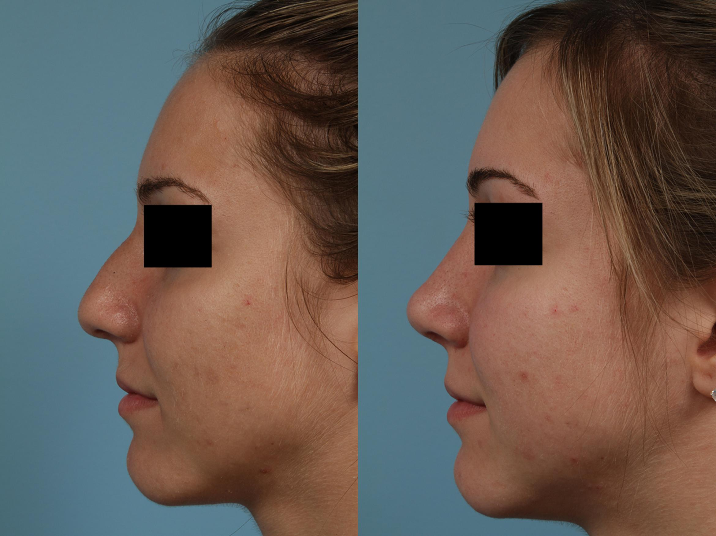 Rhinoplasty Case 324 Before & After View #1 | Chicago, IL | TLKM Plastic Surgery