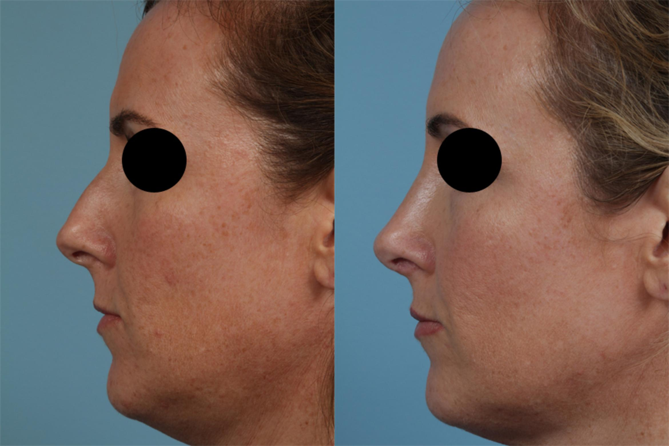 Rhinoplasty by Dr. Mustoe Case 338 Before & After View #1 | Chicago, IL | TLKM Plastic Surgery