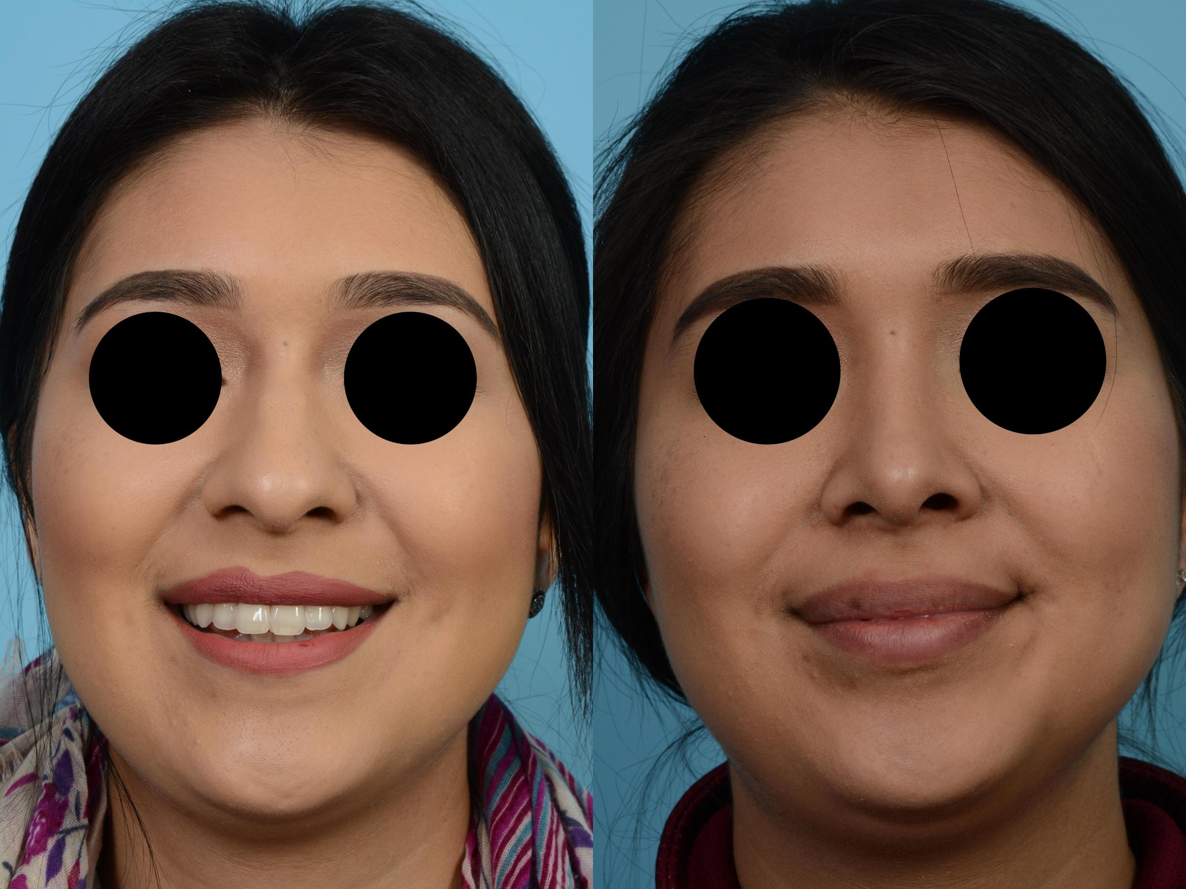 Rhinoplasty by Dr. Mustoe Case 508 Before & After View #1 | Chicago, IL | TLKM Plastic Surgery