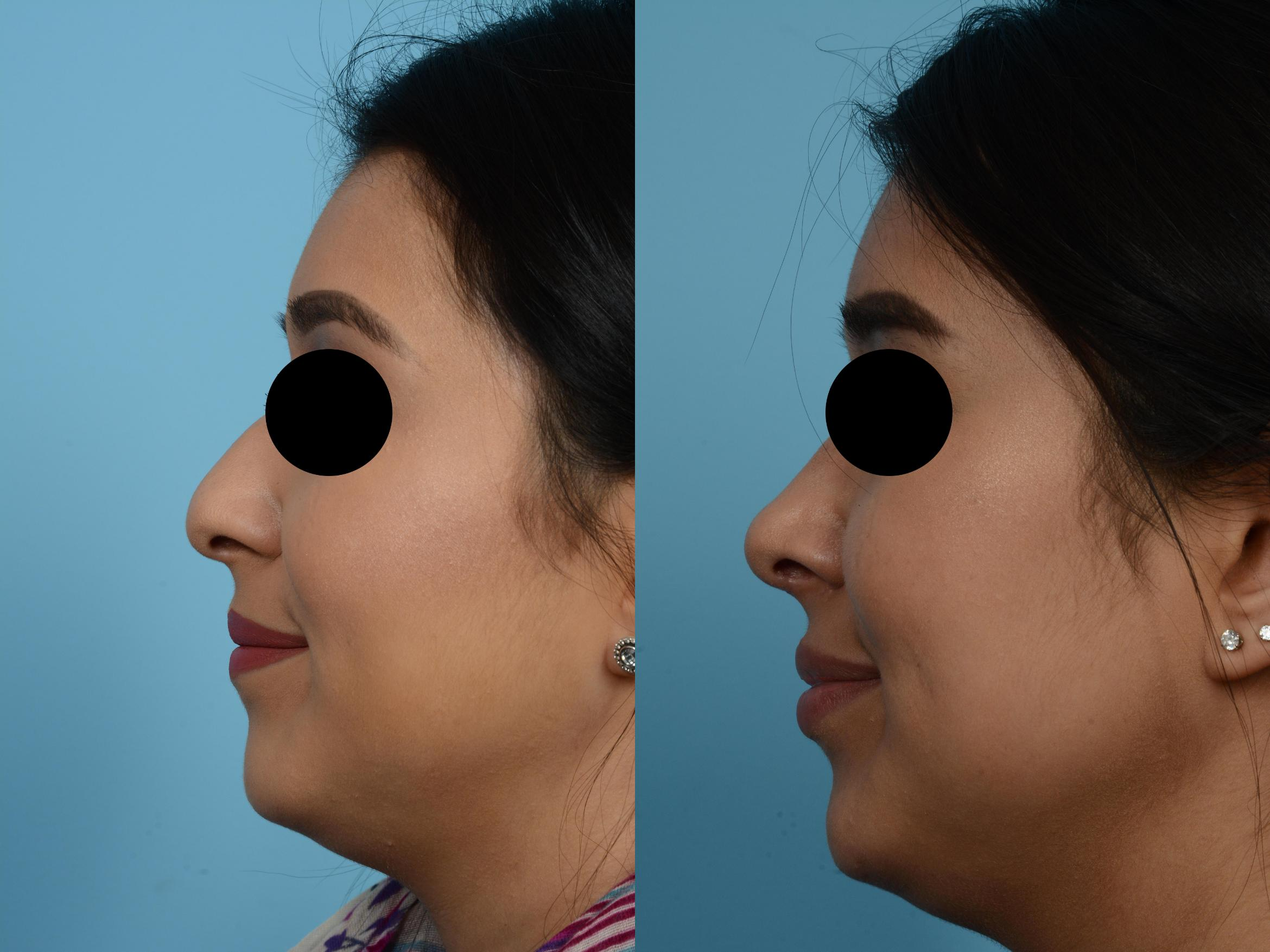 Rhinoplasty by Dr. Mustoe Case 508 Before & After View #2 | Chicago, IL | TLKM Plastic Surgery