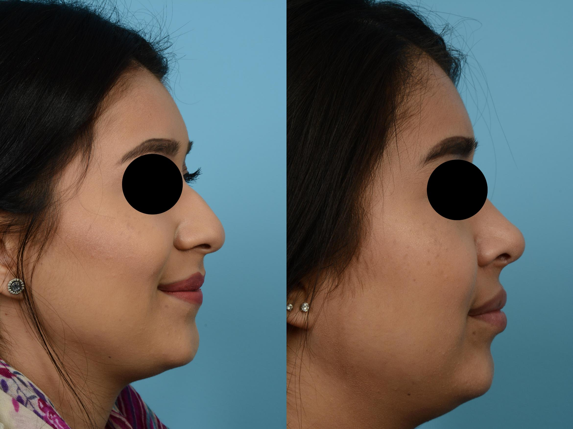 Rhinoplasty by Dr. Mustoe Case 508 Before & After View #3 | Chicago, IL | TLKM Plastic Surgery