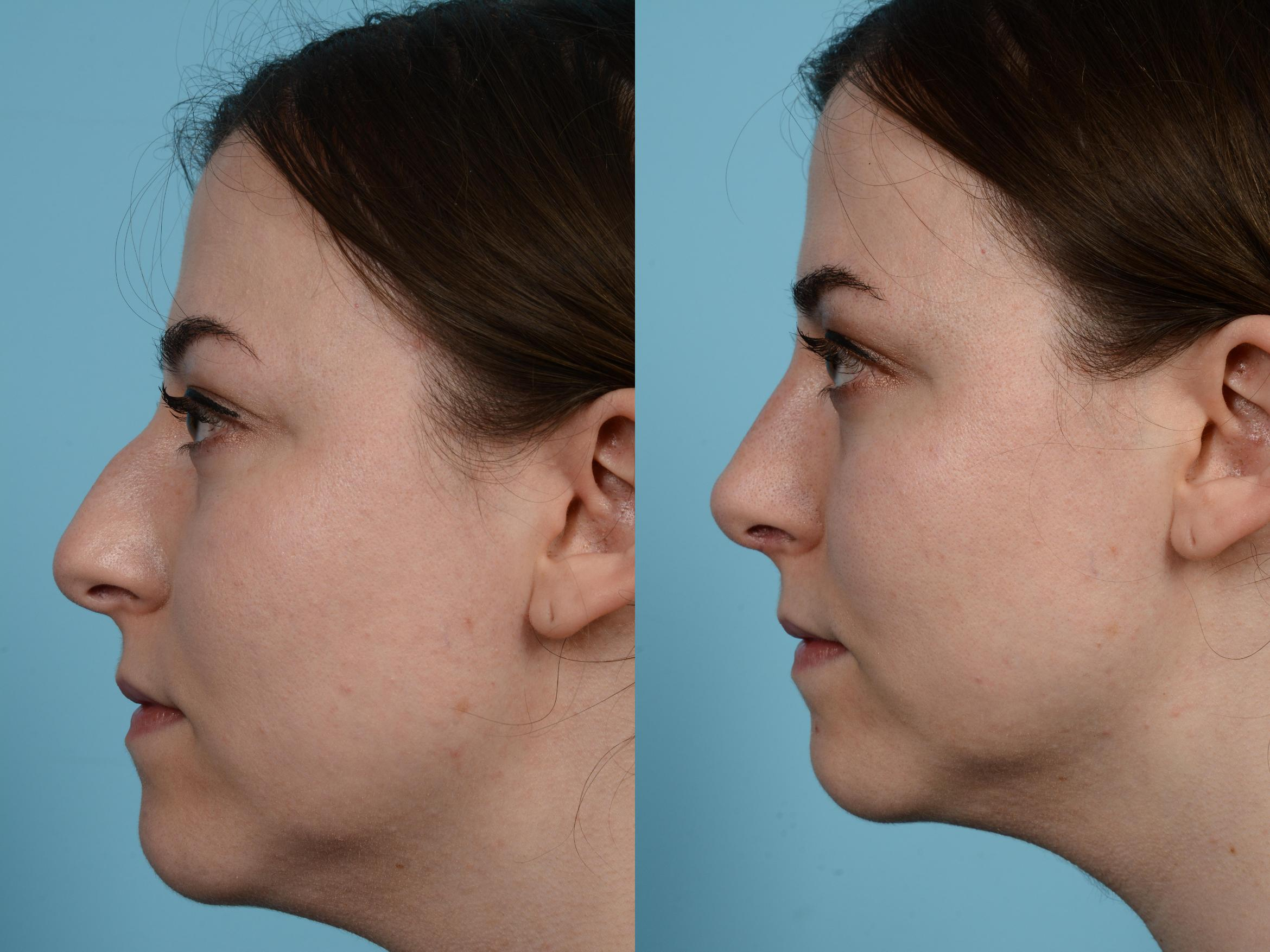 Rhinoplasty Case 584 Before & After View #1 | Chicago, IL | TLKM Plastic Surgery