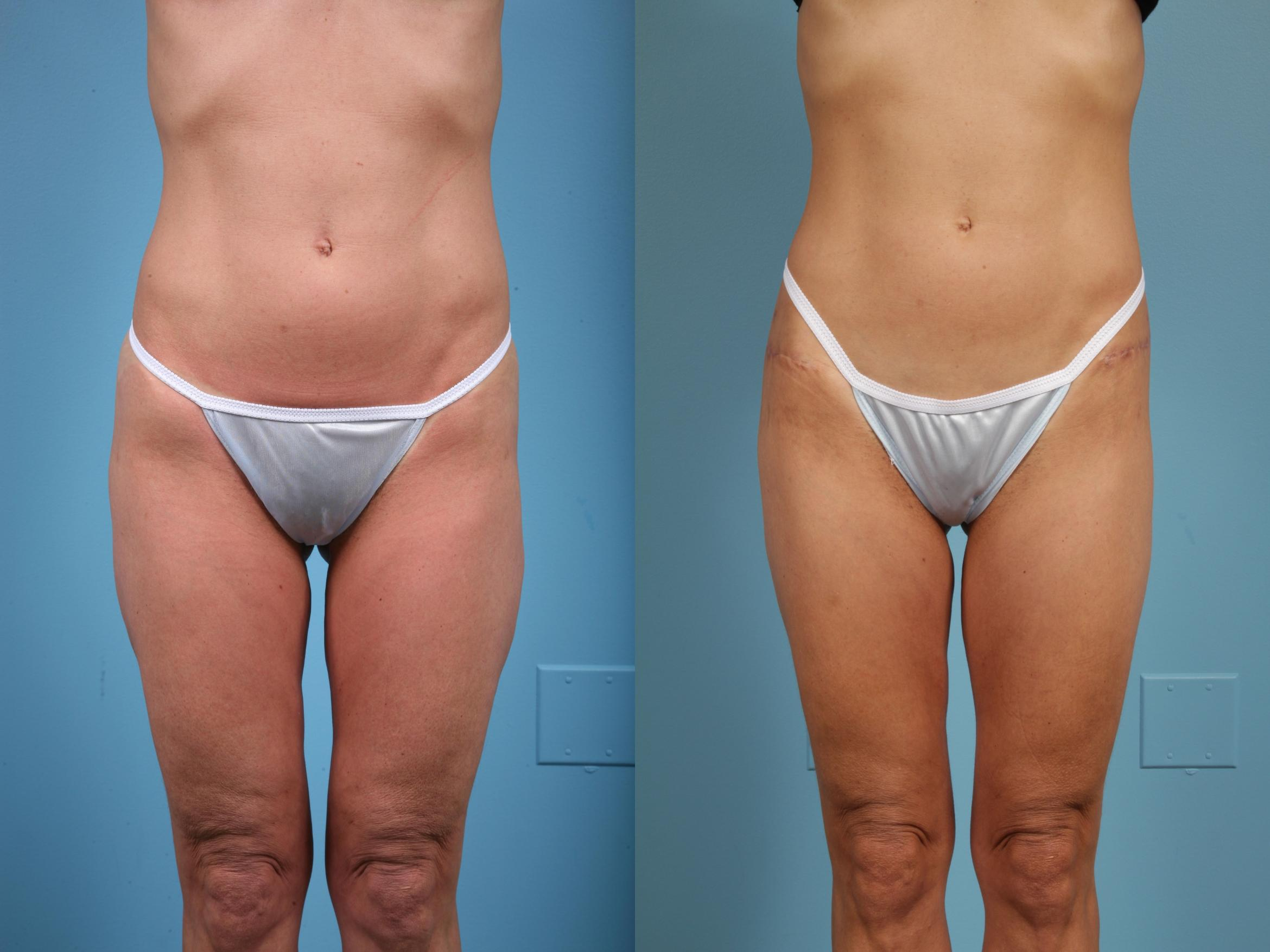 Thigh Lift Case 43 Before & After View #1 | Chicago, IL | TLKM Plastic Surgery