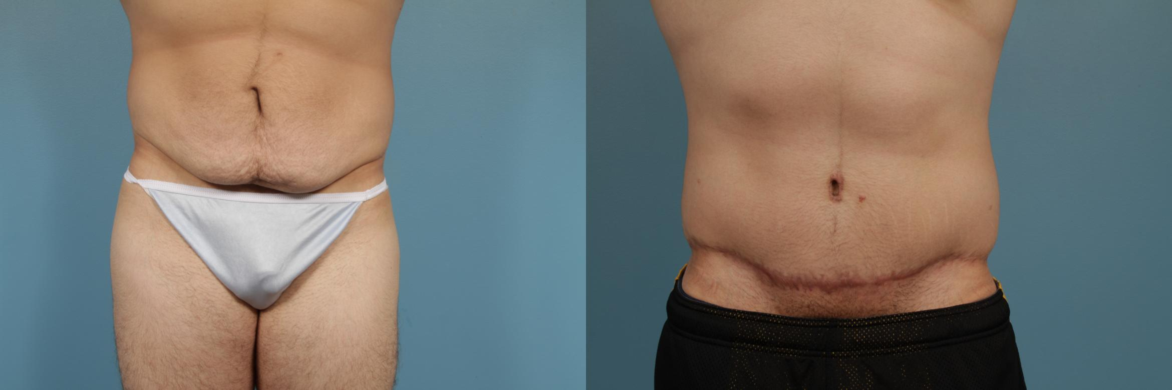 Tummy Tuck Case 296 Before & After View #1 | Chicago, IL | TLKM Plastic Surgery