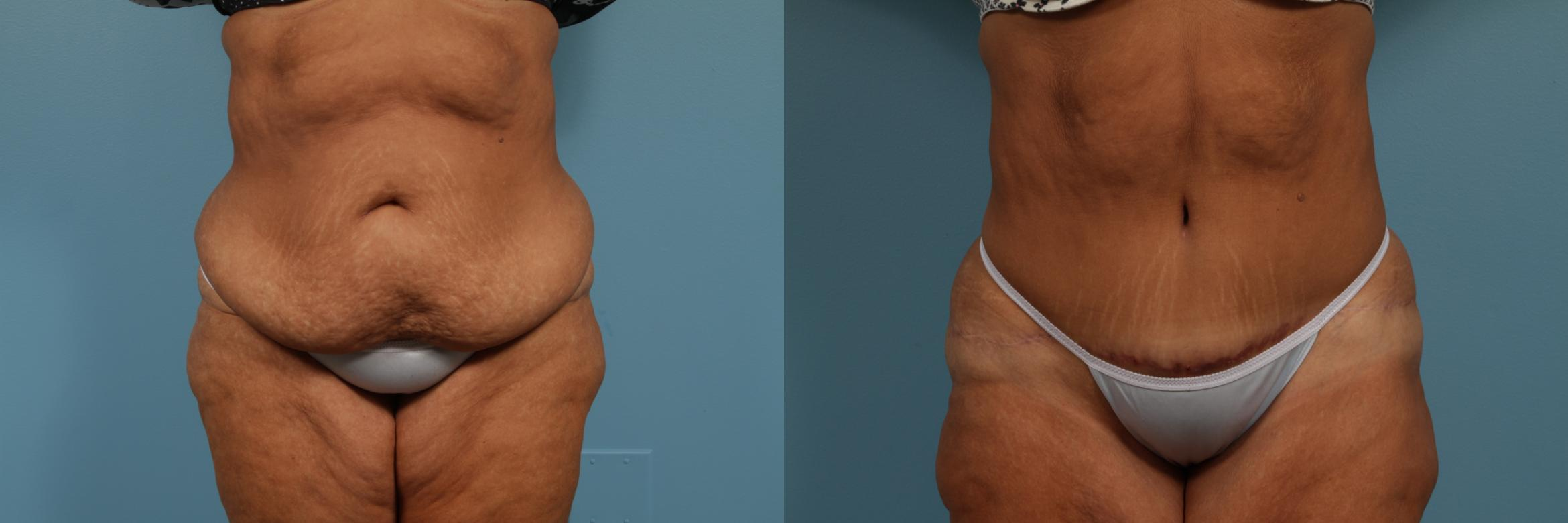 Tummy Tuck Case 297 Before & After View #1 | Chicago, IL | TLKM Plastic Surgery