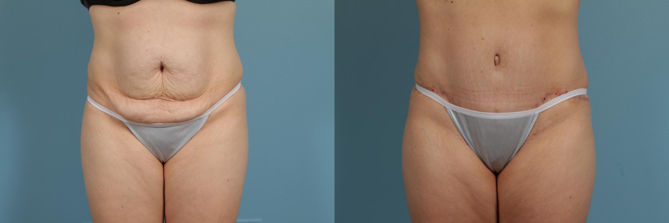 Tummy Tuck Case 299 Before & After View #1 | Chicago, IL | TLKM Plastic Surgery