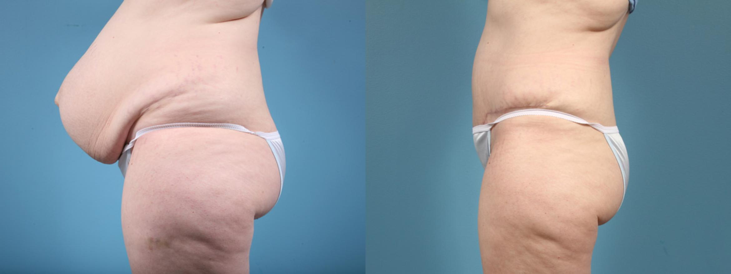 Tummy Tuck Case 4 Before & After View #2 | Chicago, IL | TLKM Plastic Surgery