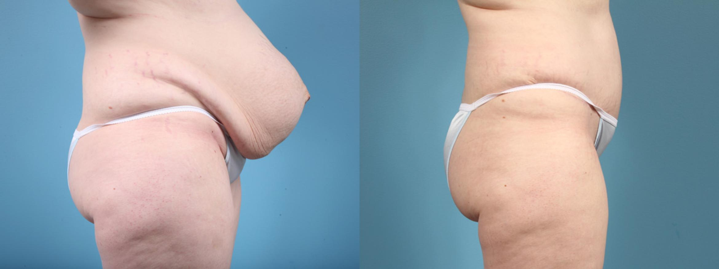 Tummy Tuck Case 4 Before & After View #3 | Chicago, IL | TLKM Plastic Surgery